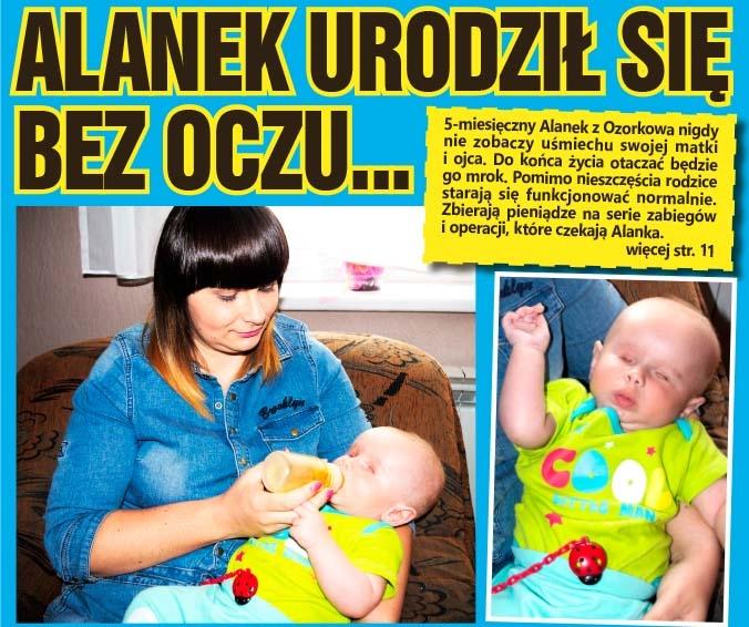 Alanek urodził się bez oczu...