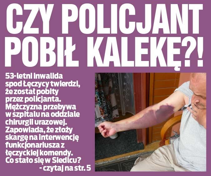 CZY POLICJANT POBIŁ KALEKĘ?!