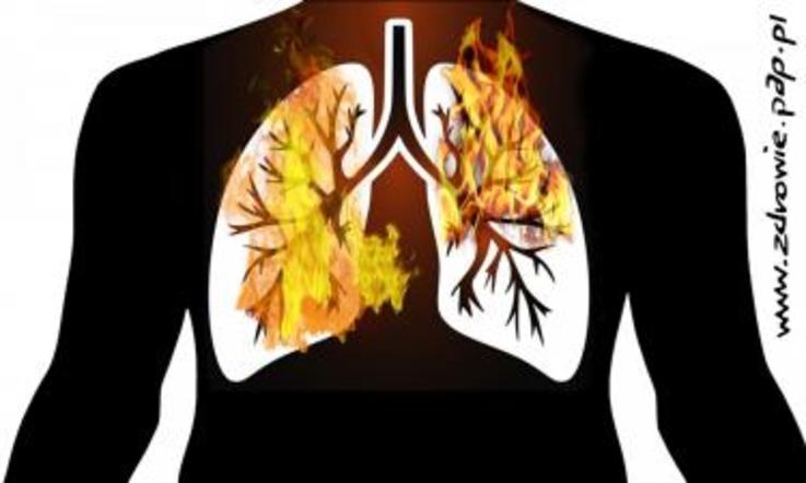 zanieczyszczenia powietrze